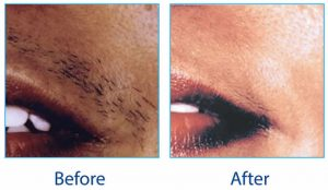 Before & After Lynton Hair Removal
