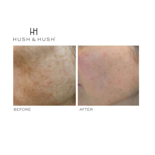 Hush & Hush SkinCapsule BRIGHTEN+ 3