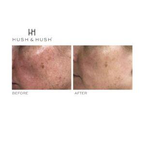 Hush & Hush SkinCapsule BRIGHTEN+ 4