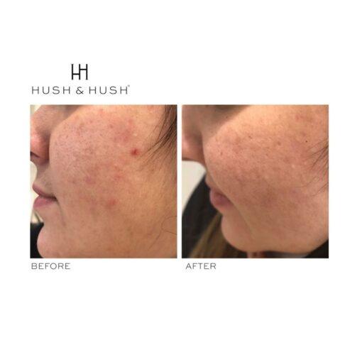 Hush & Hush SkinCapsule CLEAR+ 4